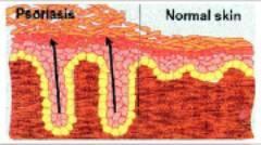 Псориазис по гениталиите